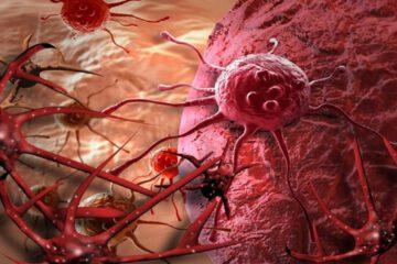 مهمترین دلایل بروز سرطان زنانه و راهکارهای پیشگیری
